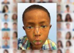 Reconhecimento facial ajudará médicos a diagnosticar doenças genéticas.